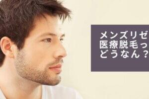 医療脱毛のリゼクリニック口コミ・評判|オトコはメンズリゼ